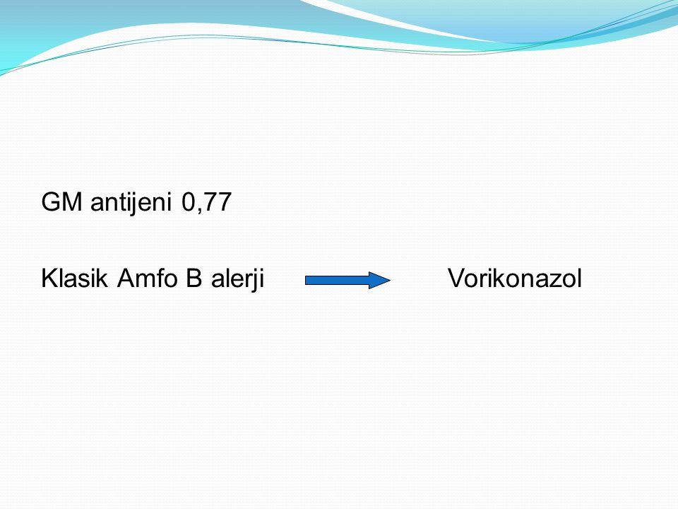 GM antijeni 0,77 Klasik Amfo B alerji Vorikonazol
