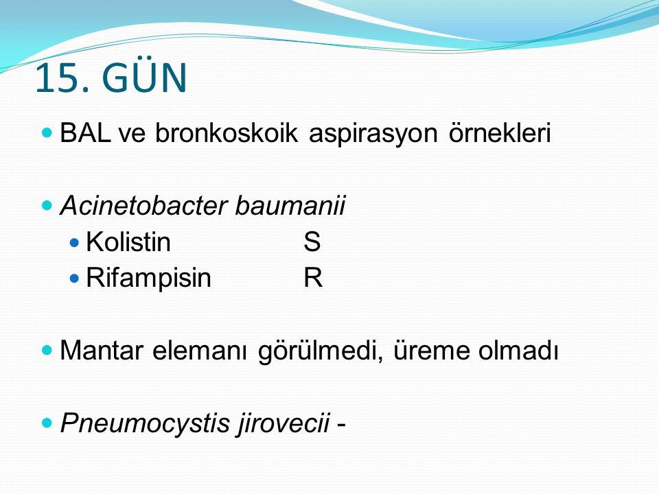 15. GÜN BAL ve bronkoskoik aspirasyon örnekleri Acinetobacter baumanii