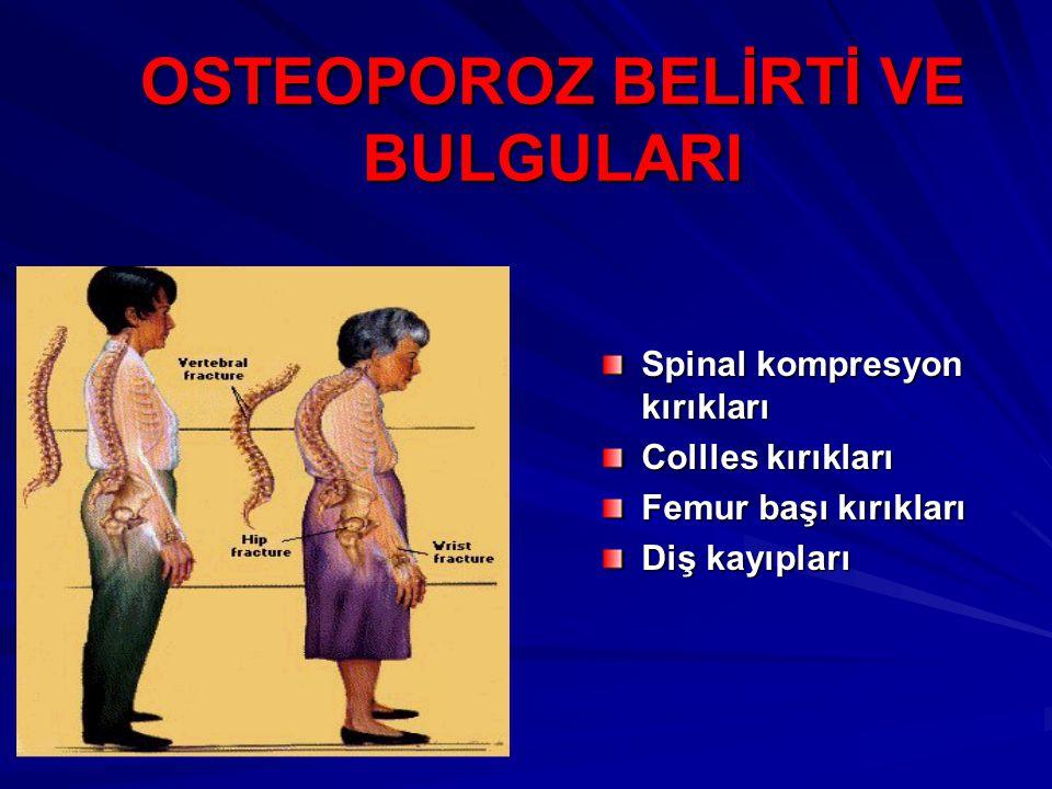 OSTEOPOROZ BELİRTİ VE BULGULARI