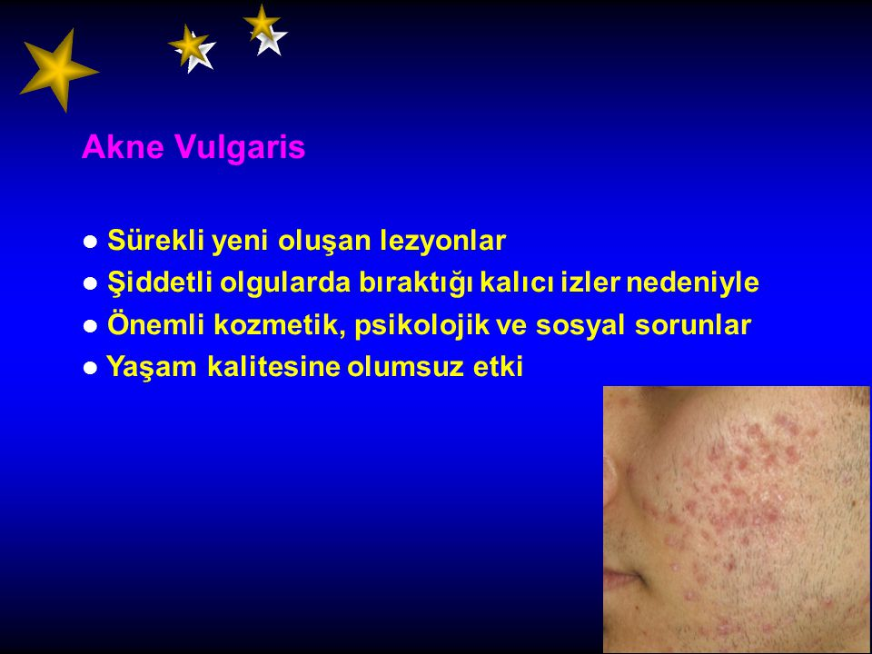 Akne Vulgaris Sürekli yeni oluşan lezyonlar