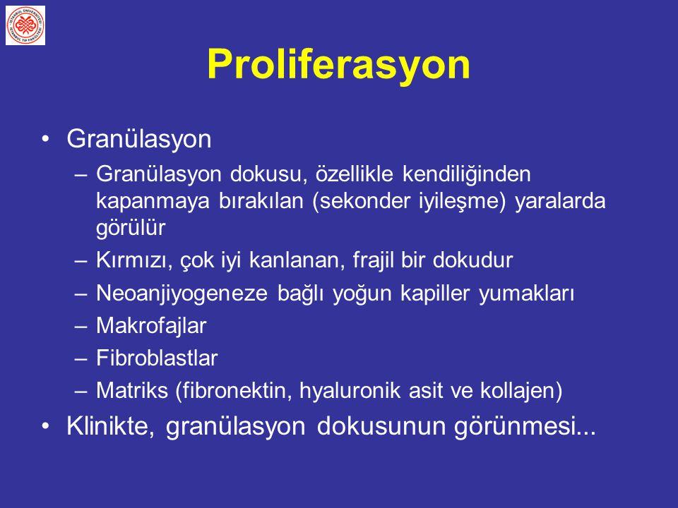 Proliferasyon Granülasyon Klinikte, granülasyon dokusunun görünmesi...