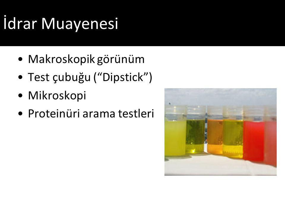 İdrar Muayenesi Makroskopik görünüm Test çubuğu ( Dipstick )