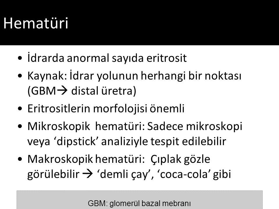 GBM: glomerül bazal mebranı