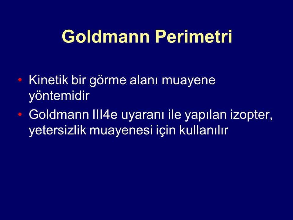 Goldmann Perimetri Kinetik bir görme alanı muayene yöntemidir