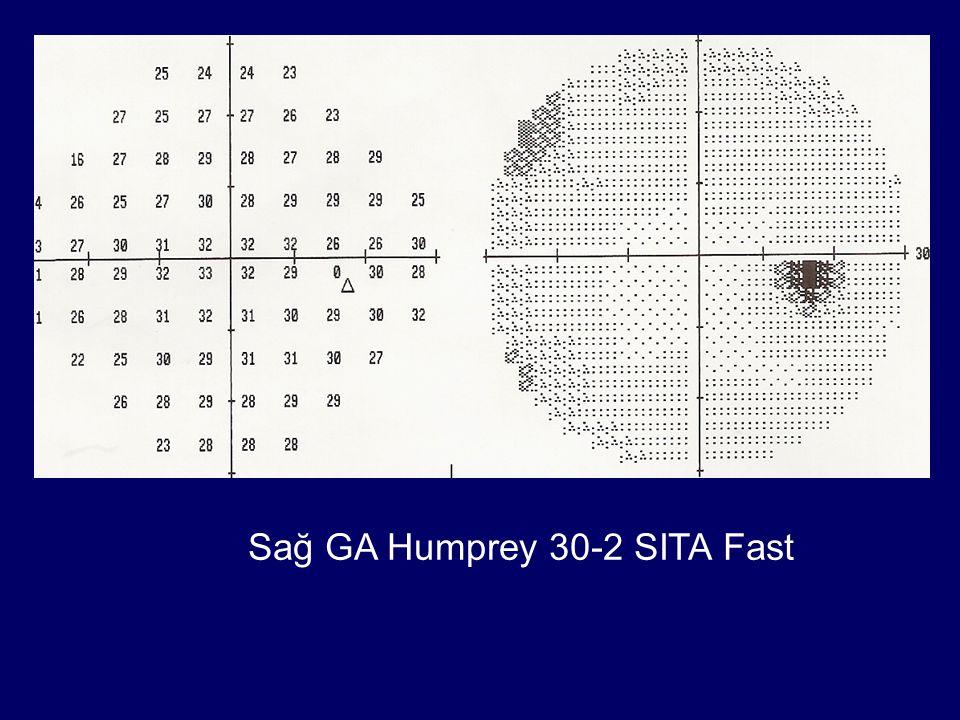 Sağ GA Humprey 30-2 SITA Fast