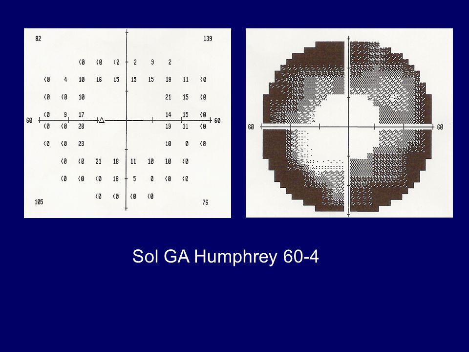 Sol GA Humphrey 60-4
