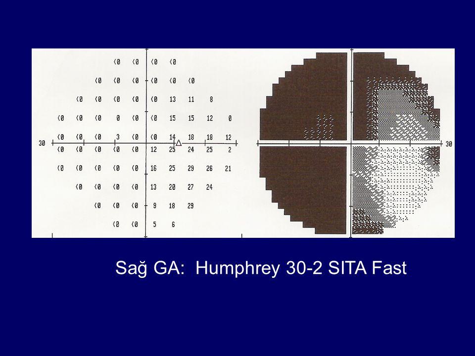 Sağ GA: Humphrey 30-2 SITA Fast