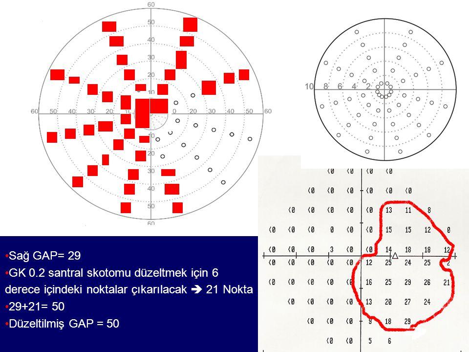Sağ GAP= 29 GK 0.2 santral skotomu düzeltmek için 6. derece içindeki noktalar çıkarılacak  21 Nokta.