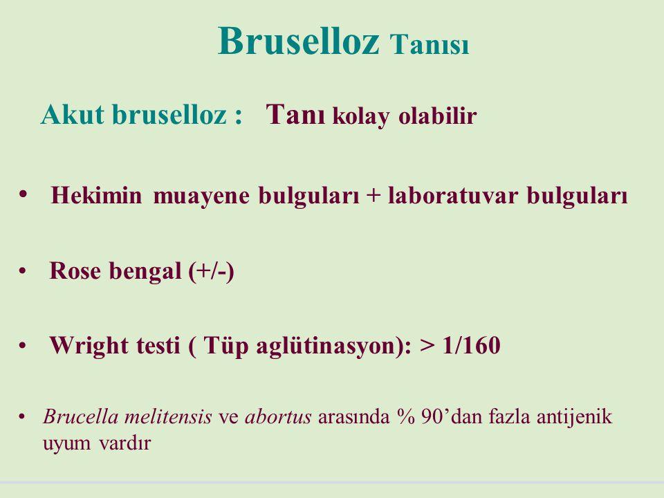 Bruselloz Tanısı Akut bruselloz : Tanı kolay olabilir
