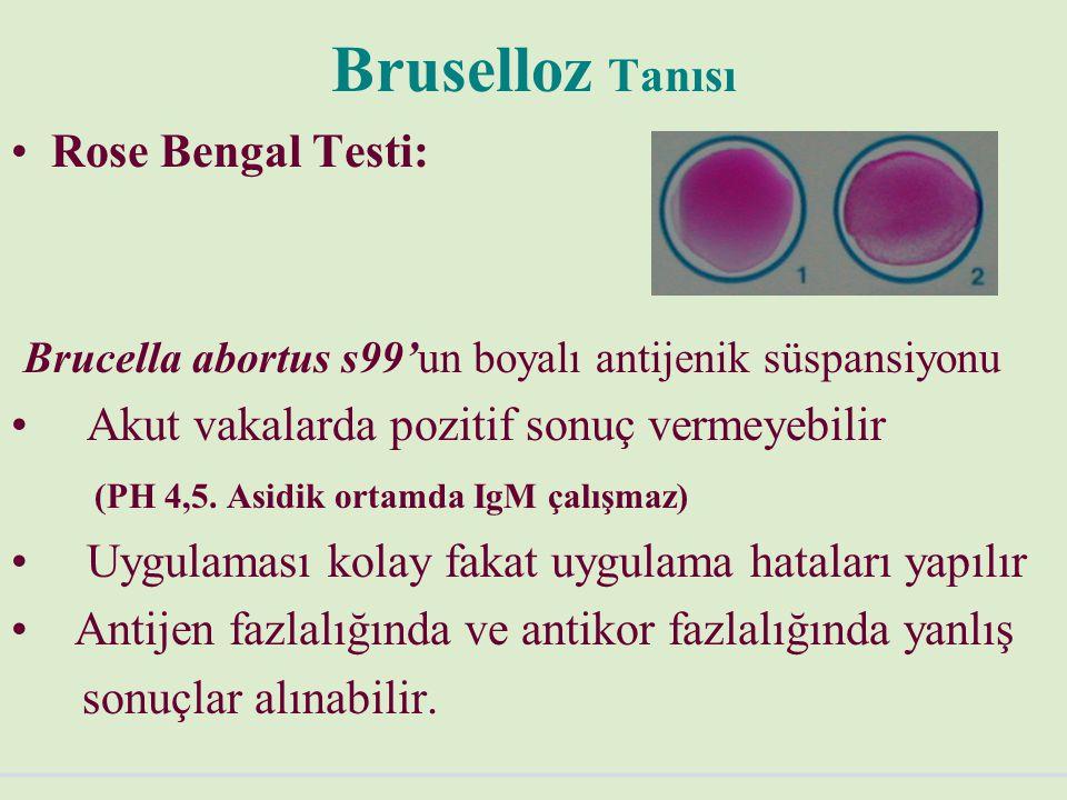 Bruselloz Tanısı Rose Bengal Testi: