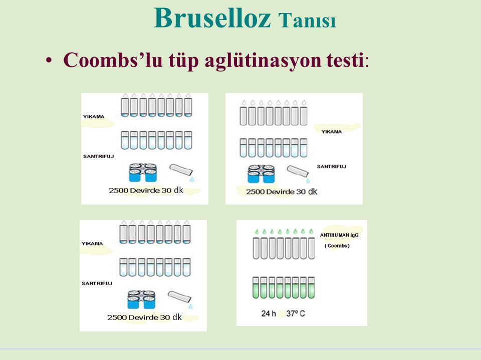 Bruselloz Tanısı Coombs'lu tüp aglütinasyon testi: