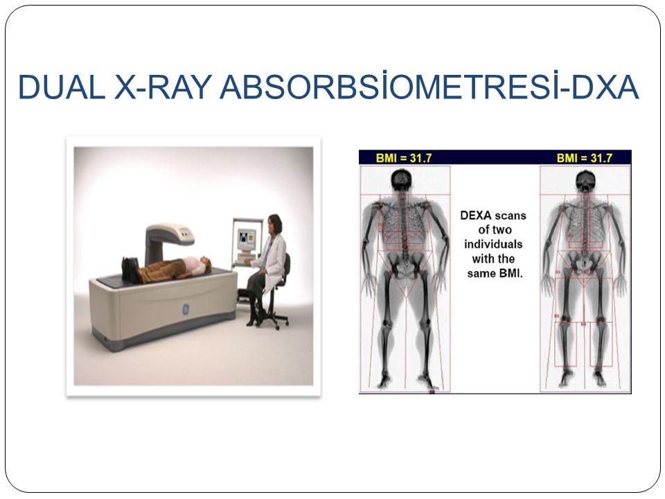 DUAL X-RAY ABSORBSİOMETRESİ-DXA
