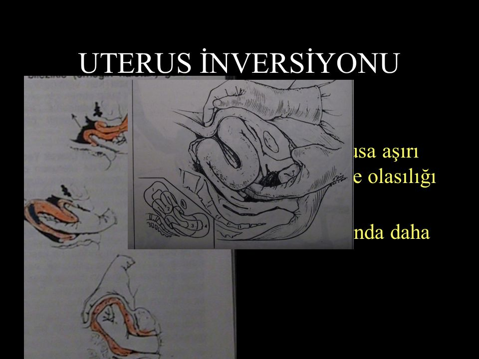 UTERUS İNVERSİYONU 2000 Doğumda bir görülür !