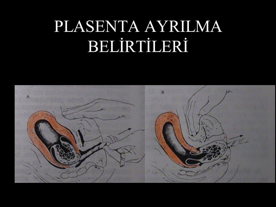PLASENTA AYRILMA BELİRTİLERİ