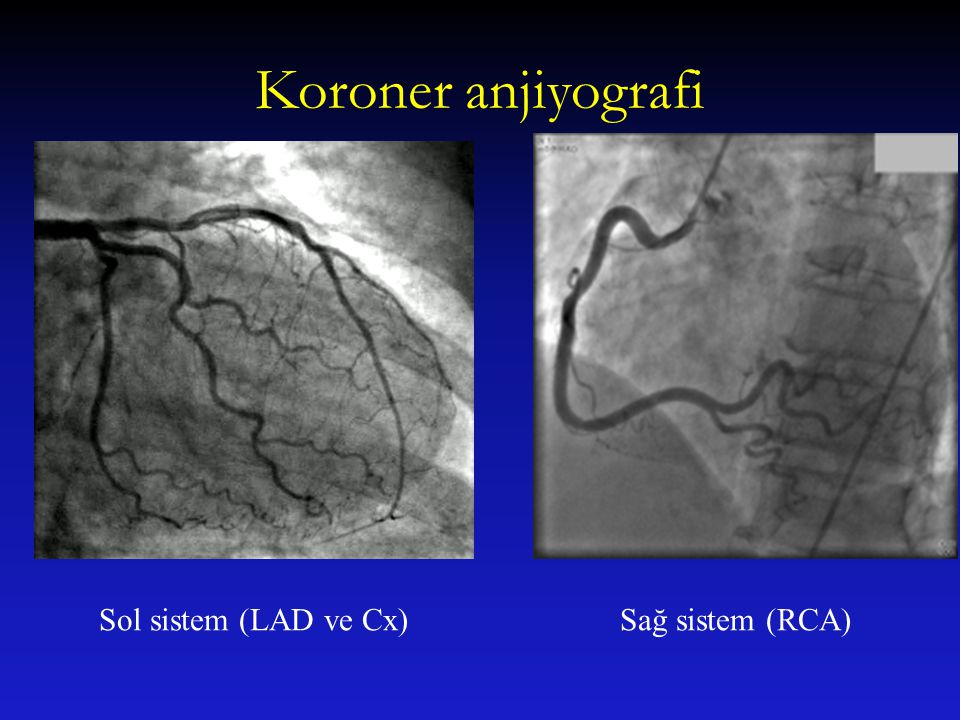 Koroner anjiyografi Sol sistem (LAD ve Cx) Sağ sistem (RCA)