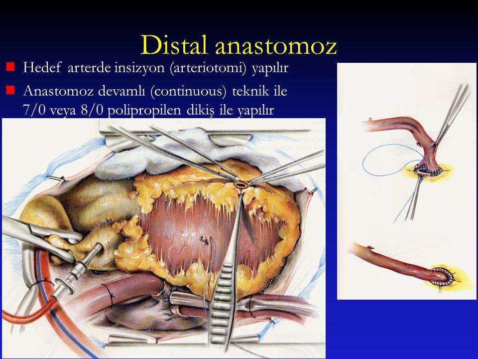 Distal anastomoz Hedef arterde insizyon (arteriotomi) yapılır