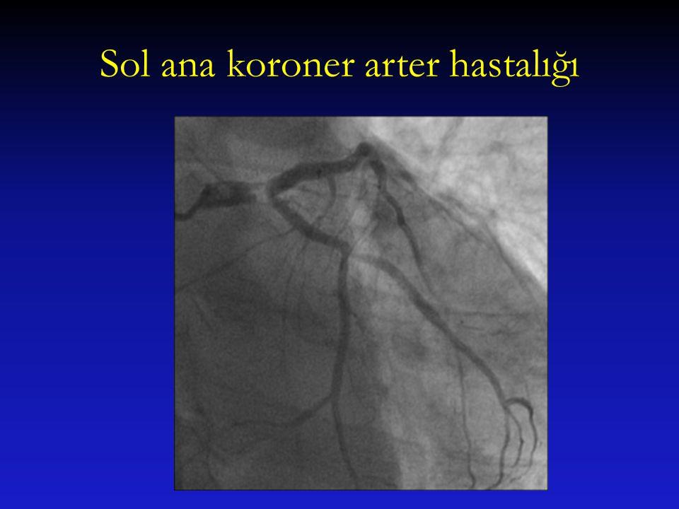 Sol ana koroner arter hastalığı