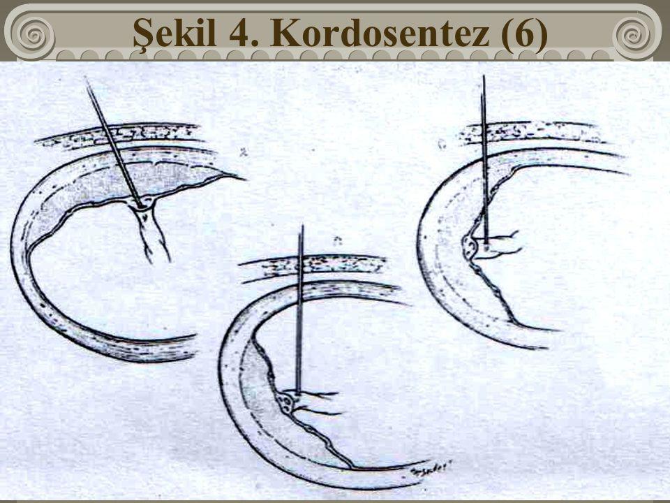 Şekil 4. Kordosentez (6)