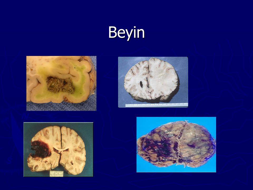 Beyin 18