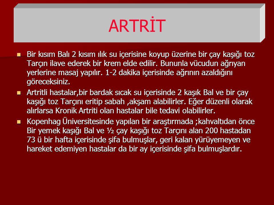 ARTRİT
