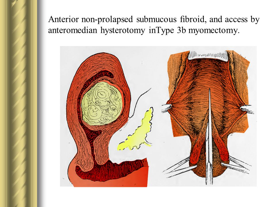 Anterior non-prolapsed submucous fibroid, and access by anteromedian hysterotomy inType 3b myomectomy.