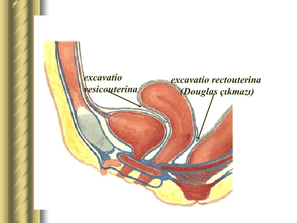 excavatio rectouterina