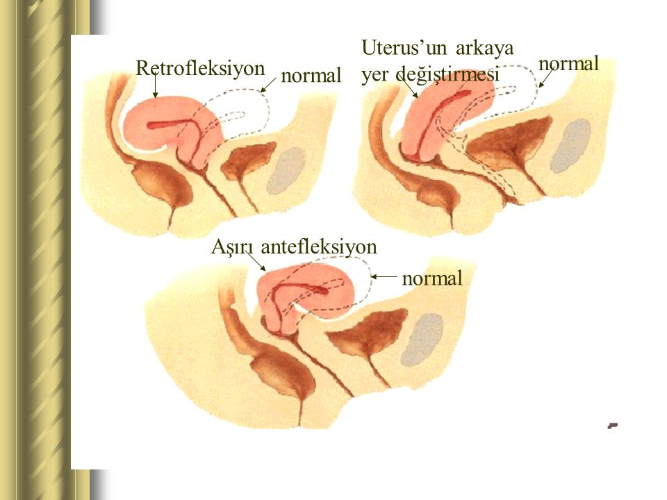 Uterus'un arkaya yer değiştirmesi normal Retrofleksiyon normal Aşırı antefleksiyon normal