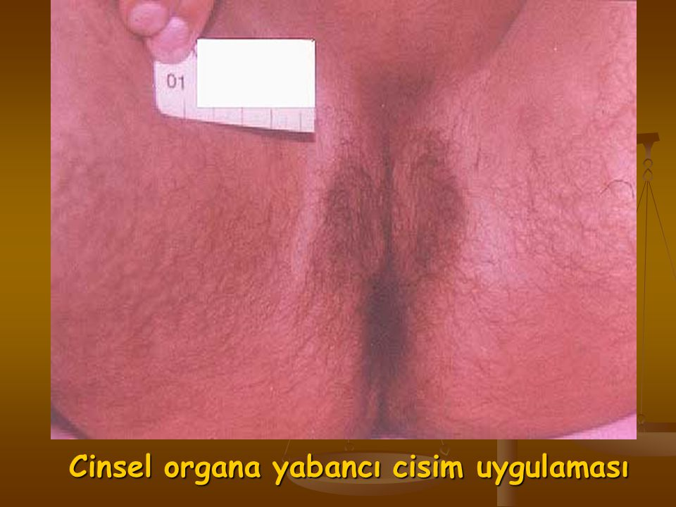 Cinsel organa yabancı cisim uygulaması