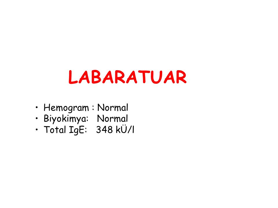 LABARATUAR Hemogram : Normal Biyokimya: Normal Total IgE: 348 kÜ/l