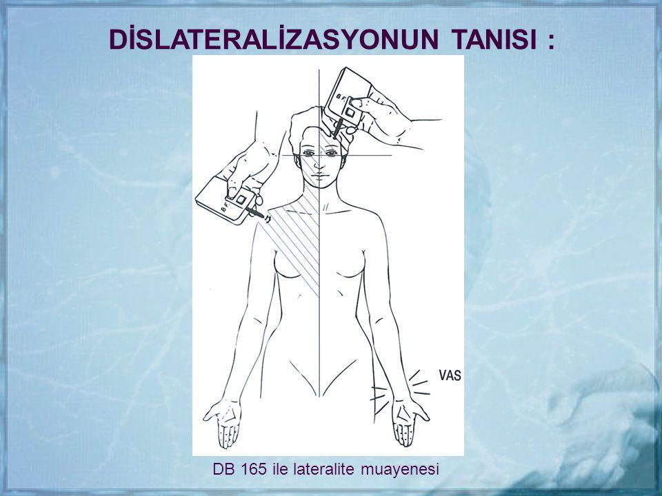DİSLATERALİZASYONUN TANISI :