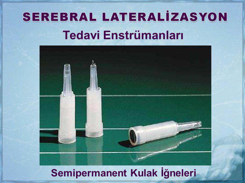 Semipermanent Kulak İğneleri