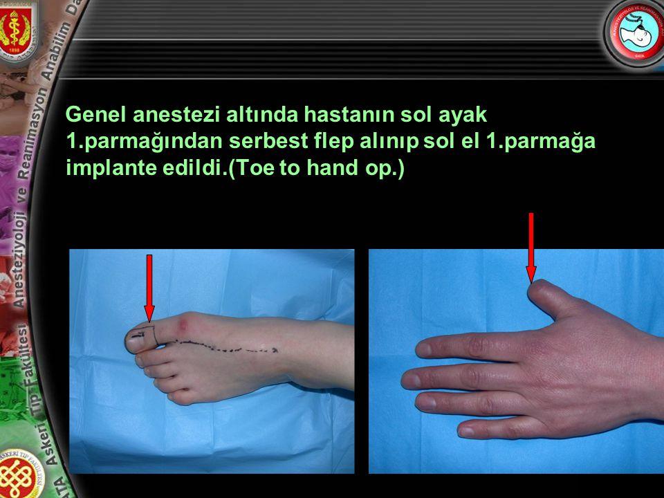 Genel anestezi altında hastanın sol ayak 1