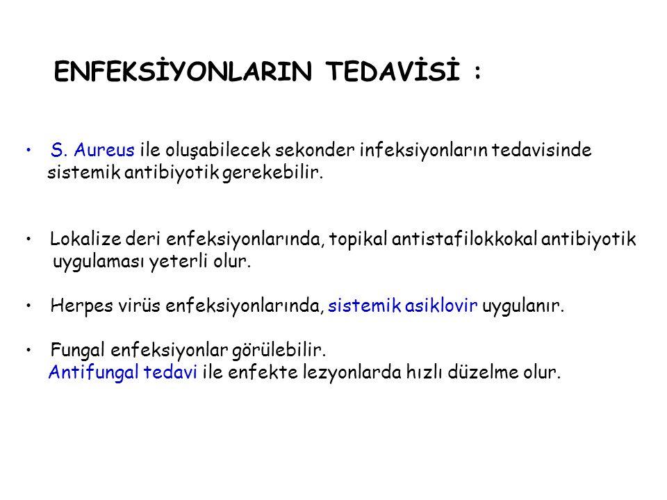 ENFEKSİYONLARIN TEDAVİSİ :