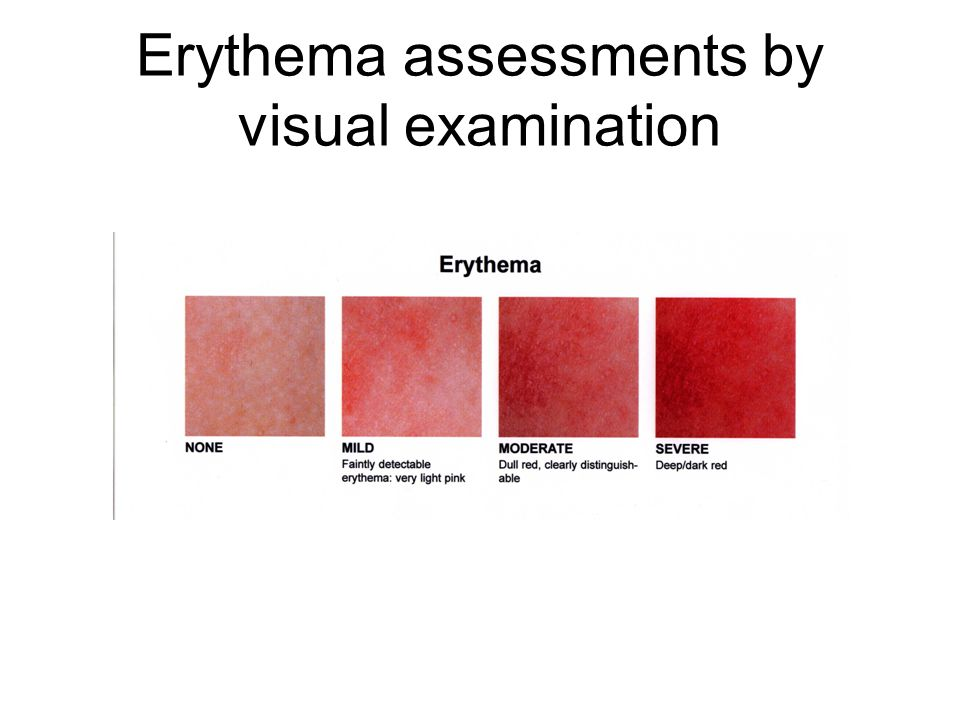 Erythema assessments by visual examination