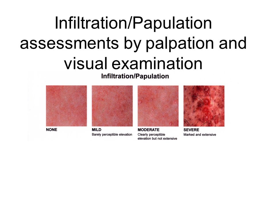 Infiltration/Papulation assessments by palpation and visual examination
