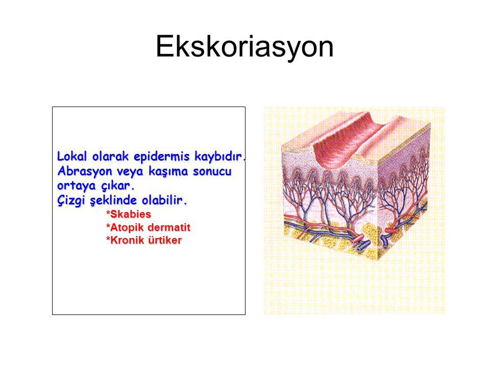 Ekskoriasyon Lokal olarak epidermis kaybıdır.