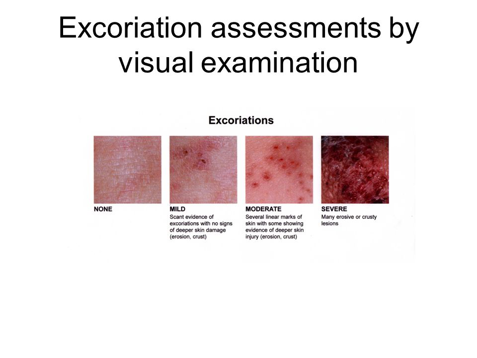 Excoriation assessments by visual examination