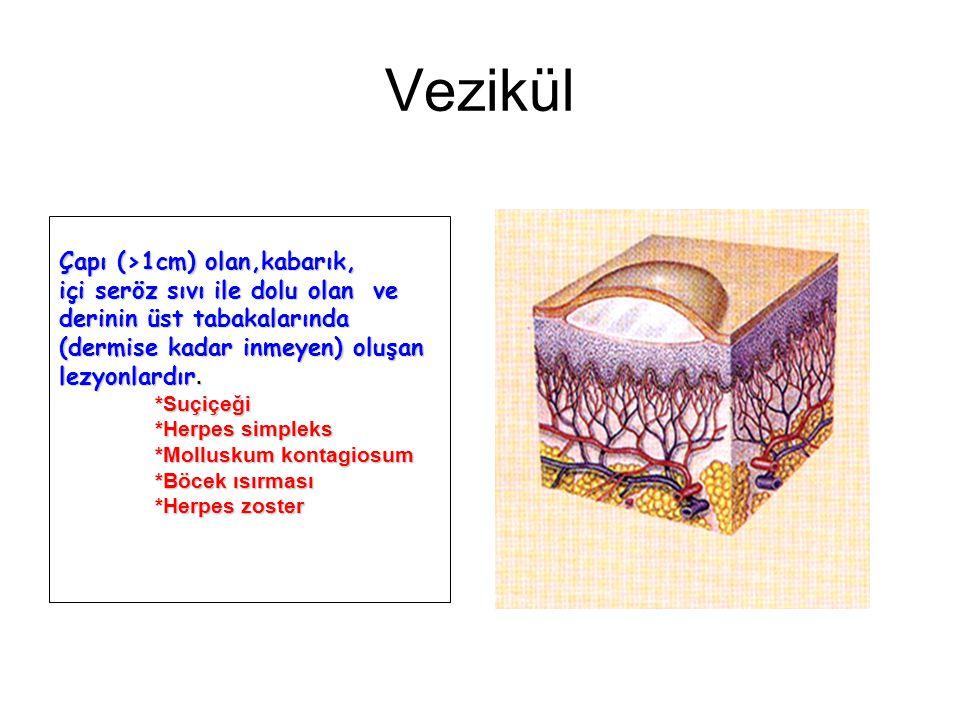 Vezikül Çapı (>1cm) olan,kabarık, içi seröz sıvı ile dolu olan ve