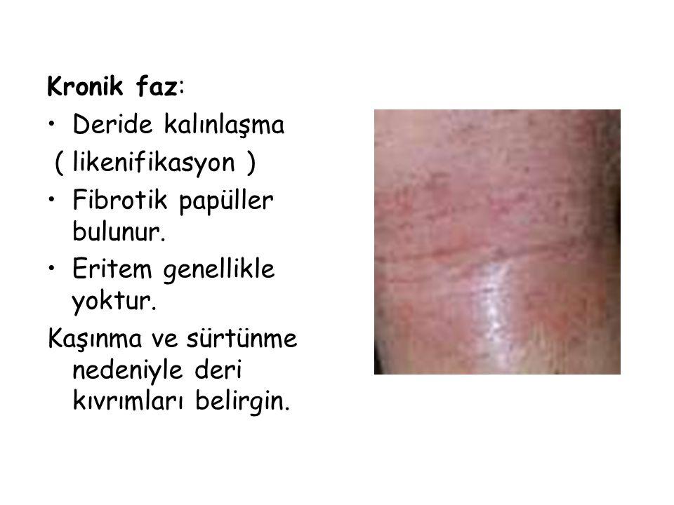 Kronik faz: Deride kalınlaşma. ( likenifikasyon ) Fibrotik papüller bulunur. Eritem genellikle yoktur.