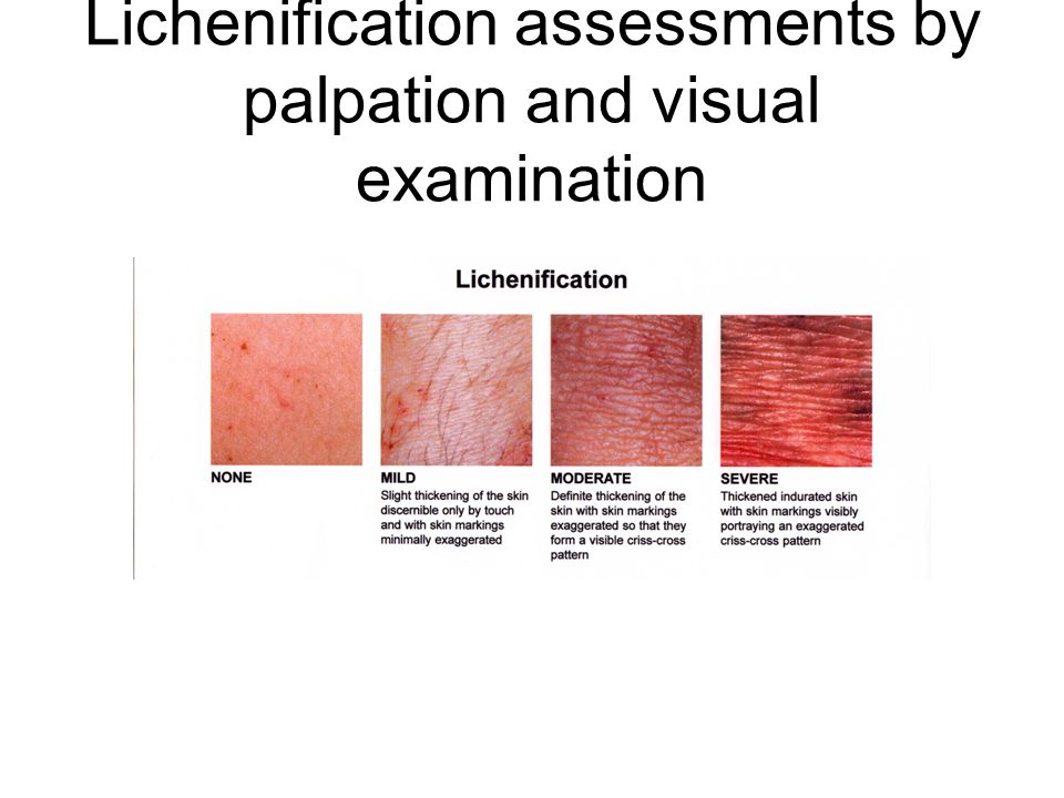 Lichenification assessments by palpation and visual examination