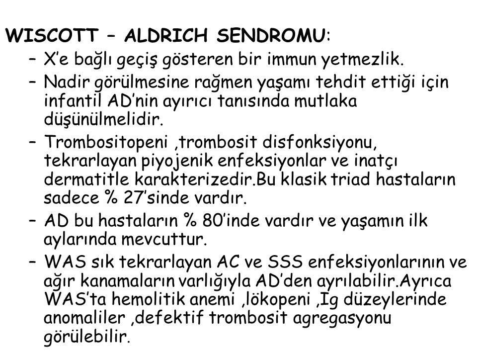 WISCOTT – ALDRICH SENDROMU: