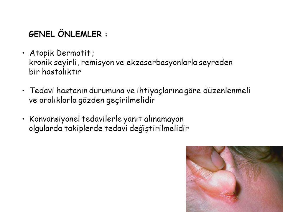 GENEL ÖNLEMLER : Atopik Dermatit ; kronik seyirli, remisyon ve ekzaserbasyonlarla seyreden. bir hastalıktır.