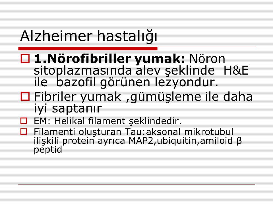 Alzheimer hastalığı 1.Nörofibriller yumak: Nöron sitoplazmasında alev şeklinde H&E ile bazofil görünen lezyondur.