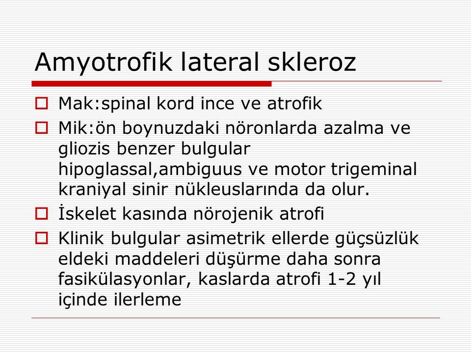 Amyotrofik lateral skleroz