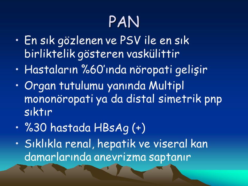 PAN En sık gözlenen ve PSV ile en sık birliktelik gösteren vaskülittir