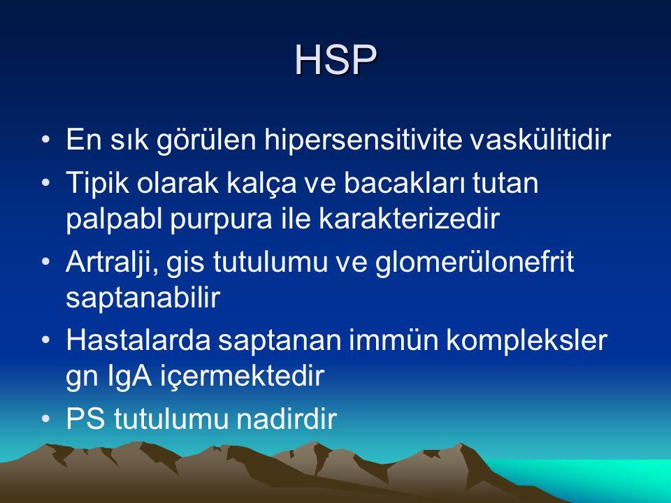 HSP En sık görülen hipersensitivite vaskülitidir