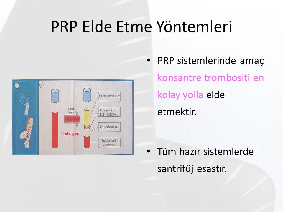 PRP Elde Etme Yöntemleri