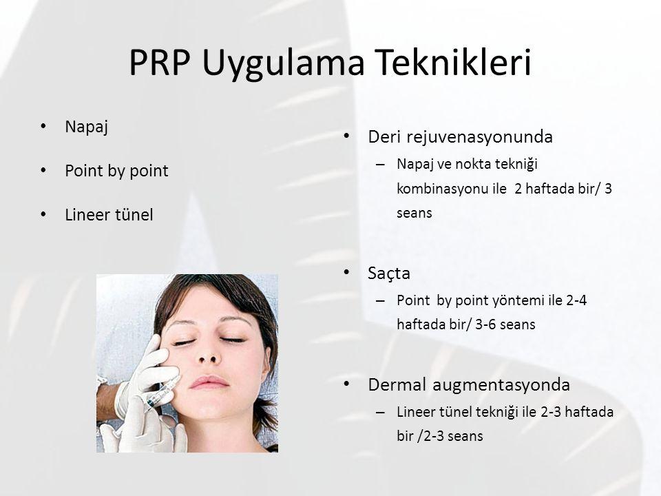 PRP Uygulama Teknikleri