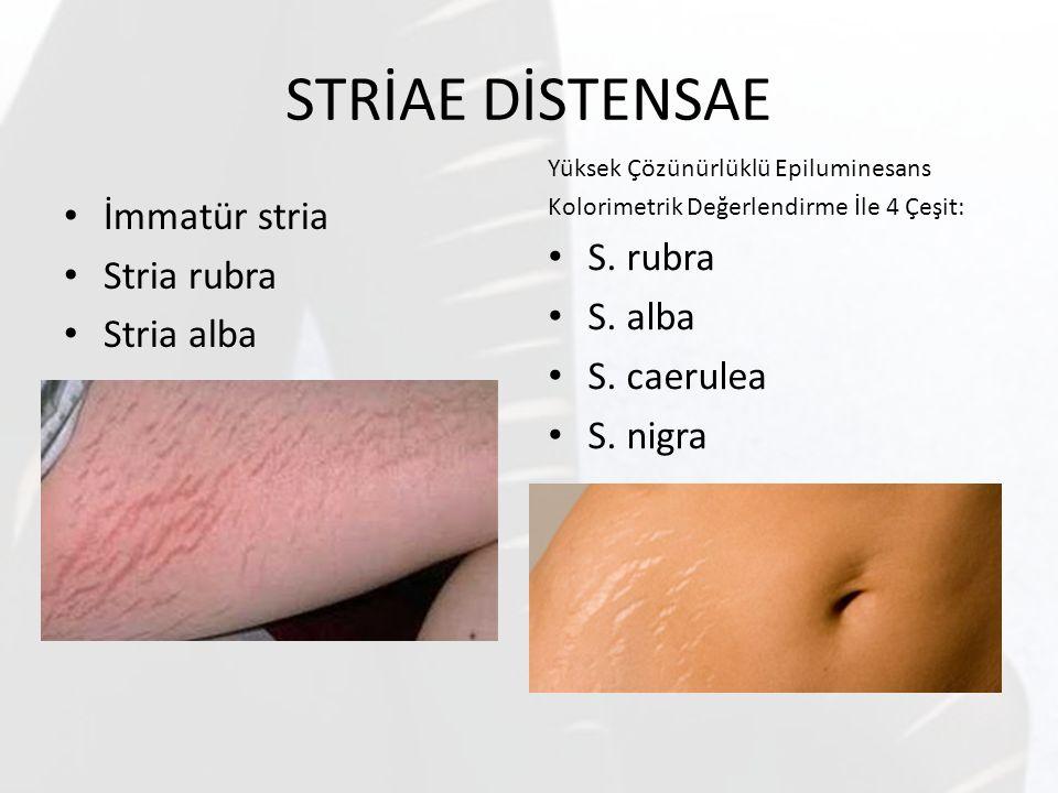 STRİAE DİSTENSAE S. rubra İmmatür stria Stria rubra S. alba Stria alba