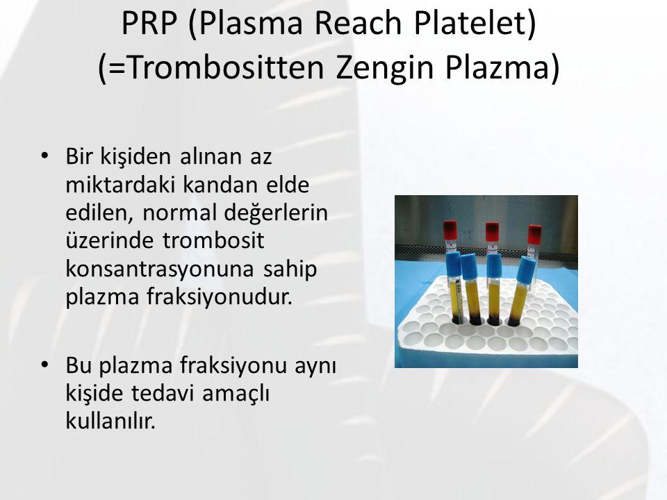 PRP (Plasma Reach Platelet) (=Trombositten Zengin Plazma)